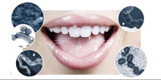 你的口腔真的健康吗?想要健康快来看冲牙器排行榜!